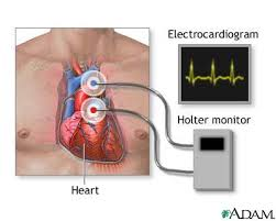 holter image